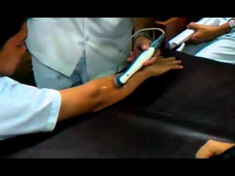 Tennis Elbow Ultrasound Machine