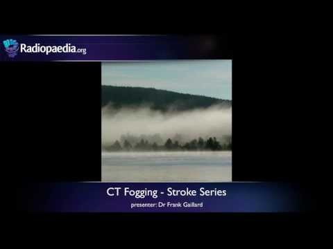 Stroke: Fogging phenomenon on CT - radiology video tutorial thumbnail