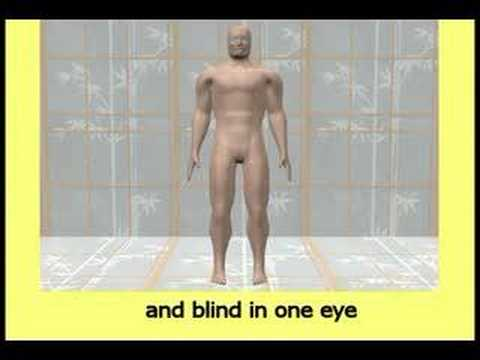 Exactly why masturbation causes crippling and blindness from YouTube · Duration:  7 minutes 14 seconds