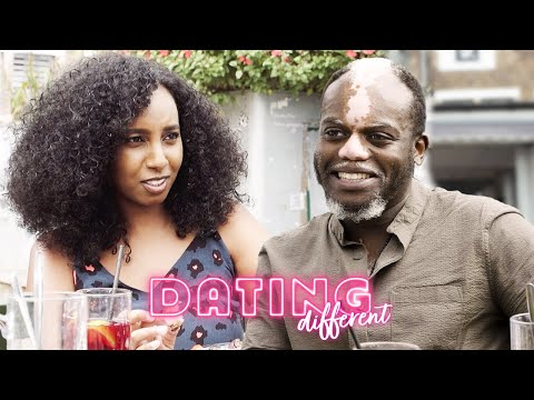I Love My Vitiligo - But Will My Blind Date? | DATING DIFFERENT