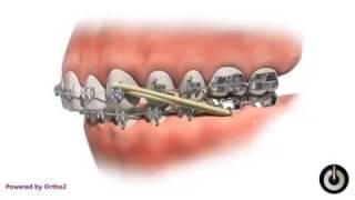 Proses gigi kawat (behel)