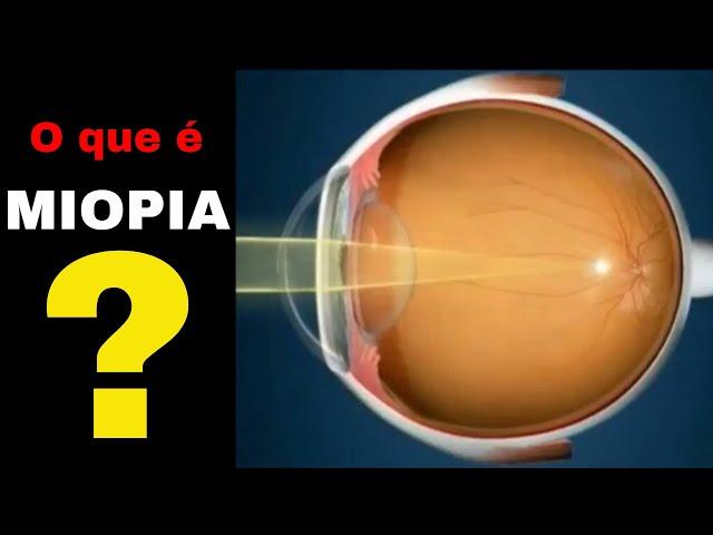 11752b836 Miopia: causas, sintomas e tratamentos