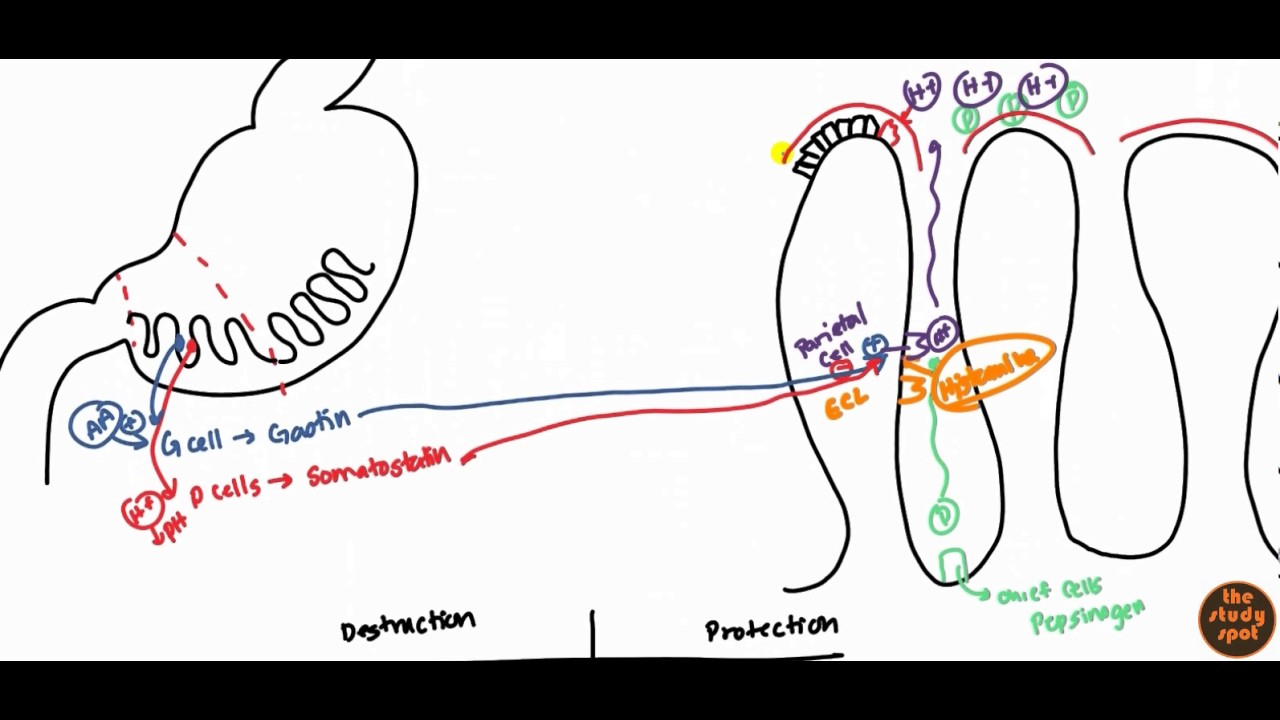 Peptic Ulcer for USMLE Step 1 and USMLE Step 2 - YouTube