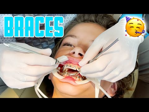 THIRTEEN YEAR OLD GETS BRACES FOR THE FIRST TIME ON TOP AND BOTTOM   MIDDLE SCHOOL BRACES