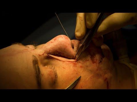 Rinoplastias: cirugías realizadas