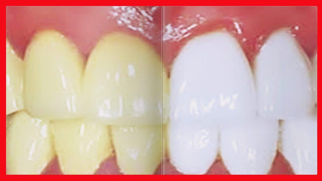 Como Clarear Os Dentes Em Casa Aprenda Como Clarear Seus Dentes