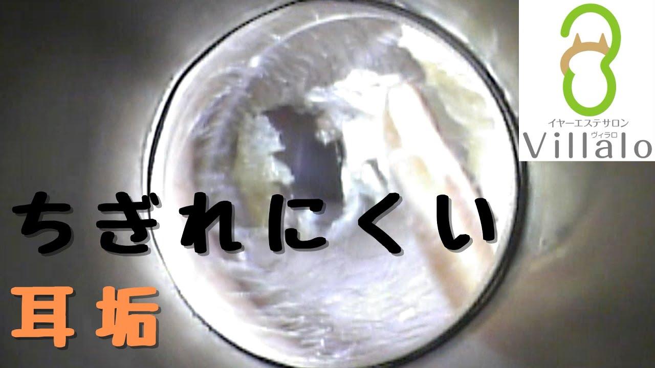 耳掃除動画vol.117「ちぎれにくい耳垢」