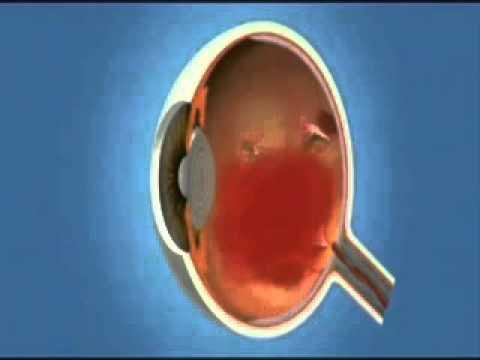 Поражение глаз при сахарном диабете