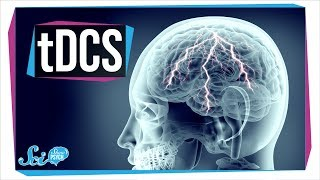 Can You Use Electricity to Supercharge Your Brain? | tDCS