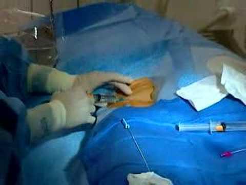 Podcast: Cardiac Catheterization with Angioplasty & Stent...