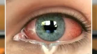видео Аллергический конъюнктивит - Причины, симптомы и лечение. МЖ.