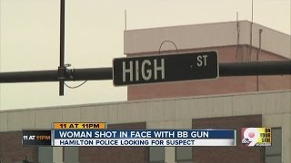 Woman shot in her face in downtown Hamilton