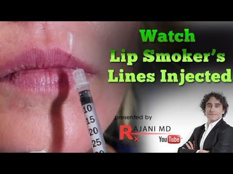 Watch Vertical Lip Smoker's Lines Injected with Dermal Filler-Before After Portland