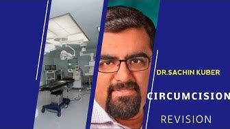 Revision Circumcision surgery results by Dr.Sachin Kuber Call+919370275336/+919370240098