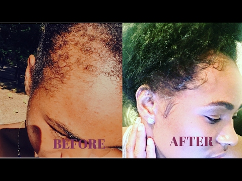 How to grow your edges back in 4 weeks