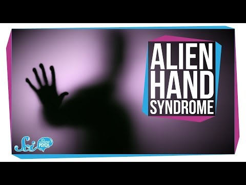 Alien Hand Syndrome: When A Limb Goes Rogue