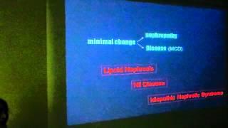 Minimal change nephrotic syndrome  Prof  Hussein Chahine, Alazhar University