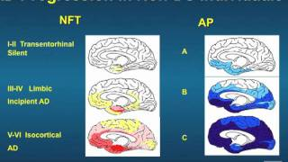 "Dr. Linda Ercoli ""Neuroimaging in Down syndrome"" Thumbnail"
