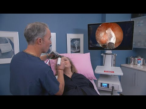 Watch Cryotherapy to Treat Chronic Nasal Congestion