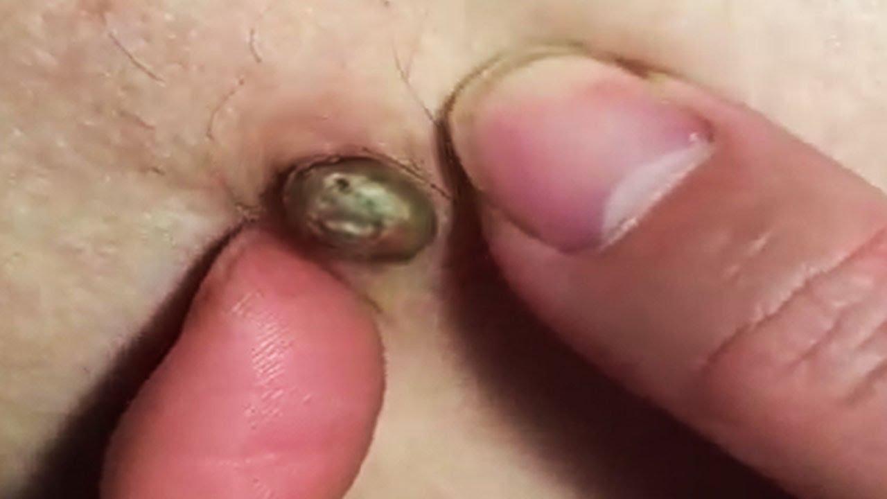 big pimple on forehead #9