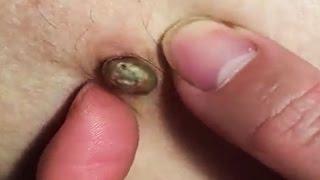 Dr. Pimple Popper vs Dr. Popper (Blackheads Removal)