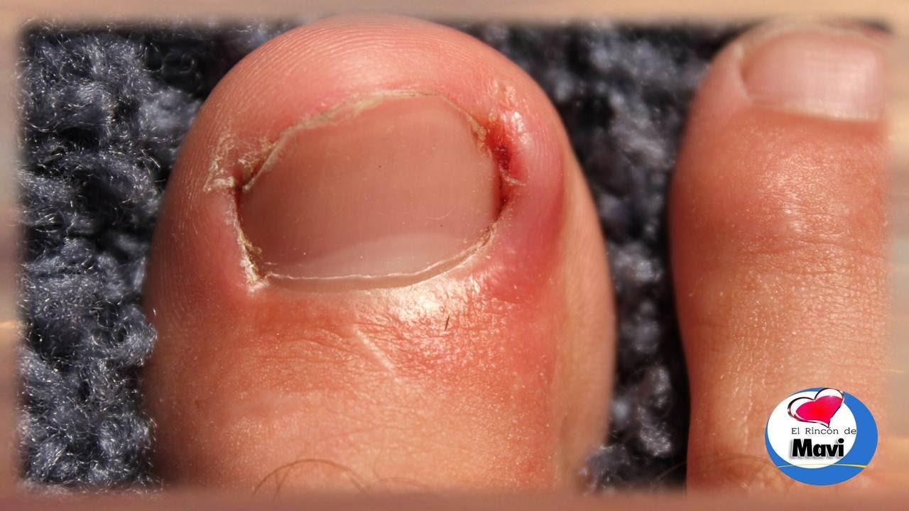 Los medios públicos del hongo sobre el dedo