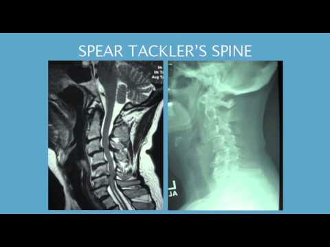 Dr. Clement Jones, Saint Francis Memorial Hospital, lecture on Spine Injuries in Athletes
