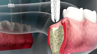 Zahn-Implantate - nicht für jeden geeignet