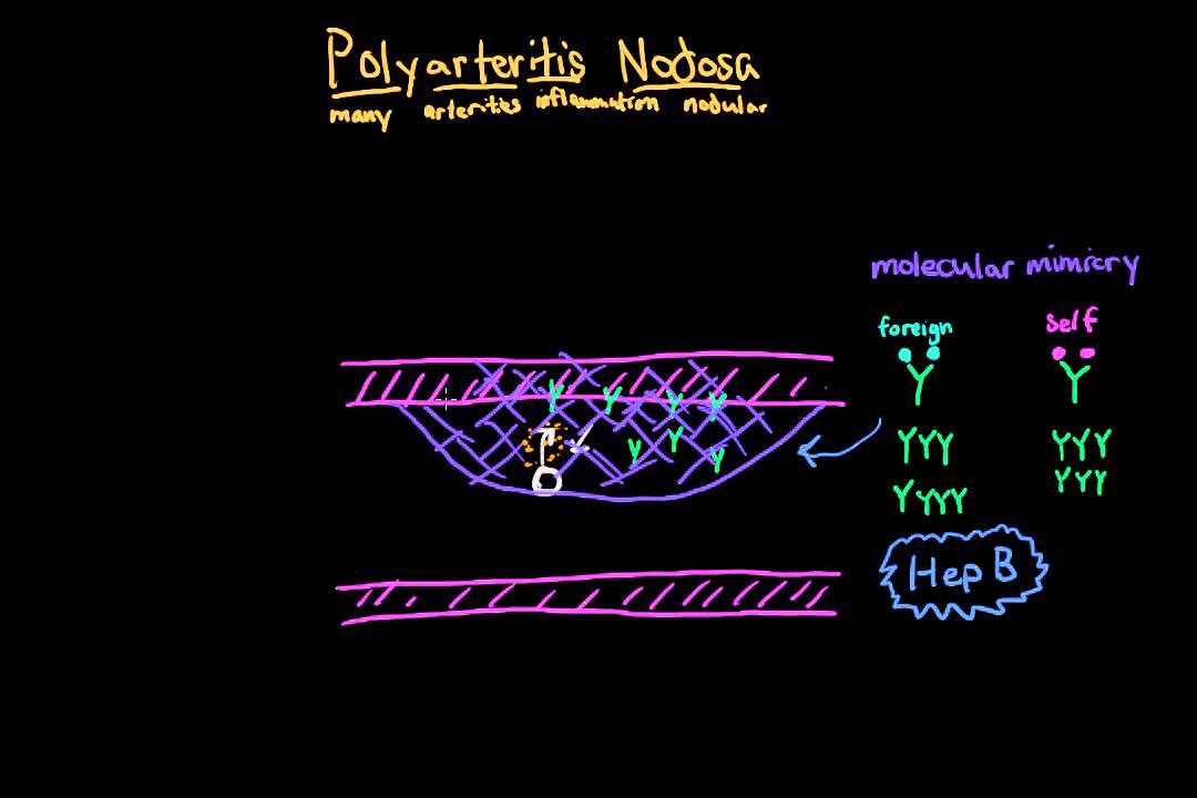 Polyarteritis nodosa: Bloedvatziekte met variabele ...
