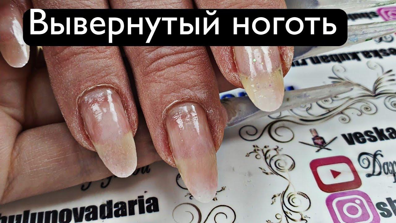 ВЫВЕРНУТЫЙ НОГОТЬ. Сложное выравнивание ногтей. Поворачиваем арку ногтя, подробно