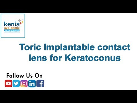 Toric Implantable contact lens for Keratoconus
