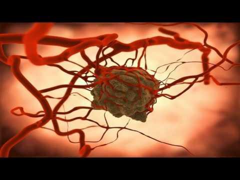 Breast Cancer Lumpectomy and Sentinel Lymph Node Biopsy, Darrin Hansen MD, Salt Lake City