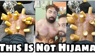 Cupping Therapy On Body Builder IFBB Pro Junaid Kaliwala