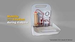 hqdefault - Portable Renal Dialysis Machine