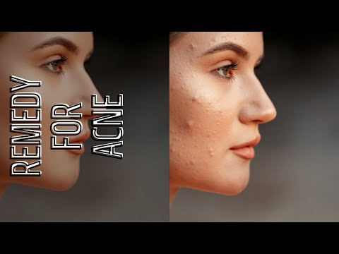 How To Get Rid Of Acne And Spots And Pimples 100% Works😍👍