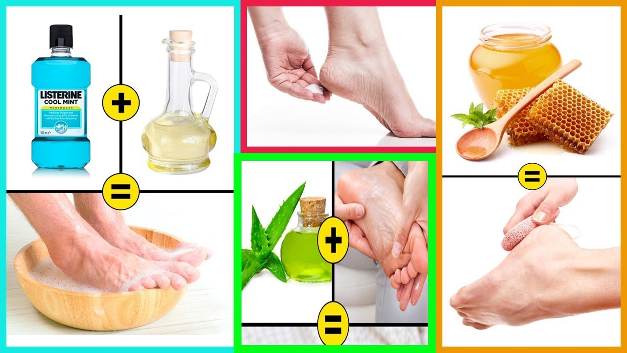 10Home Remedies toRemove Cracked Heels and Get Beautiful Feet recommend