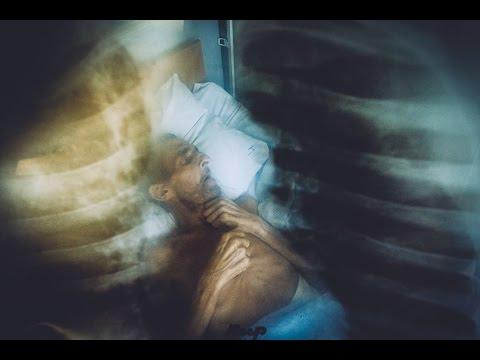 Туберкулез во «всесоюзной здравнице» | Радио Крым.Реалии
