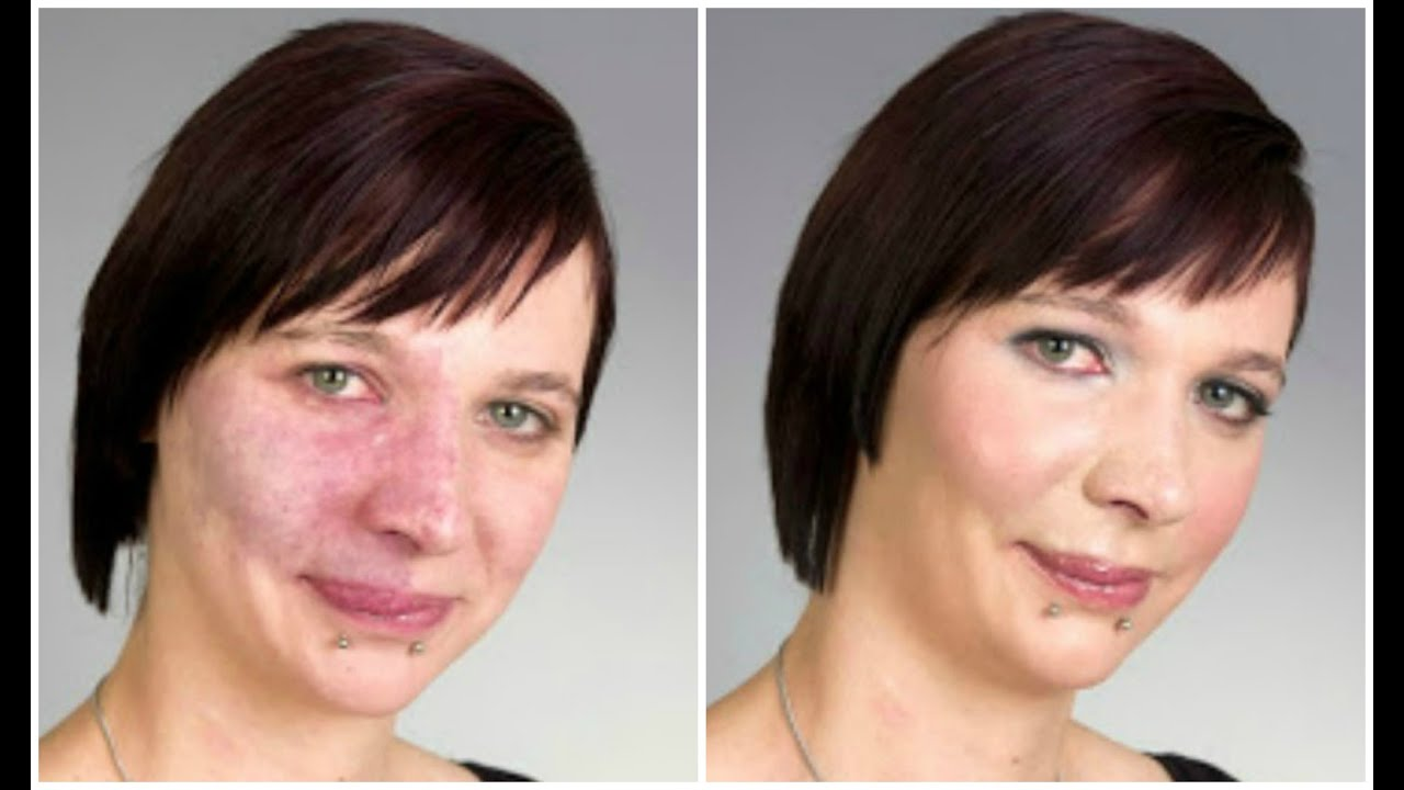 Super high coverage concealer hides acne scars tattoos for Covering scars with tattoo before and after