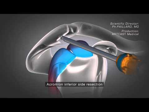 Shoulder Arthroscopy - Acromioplasty