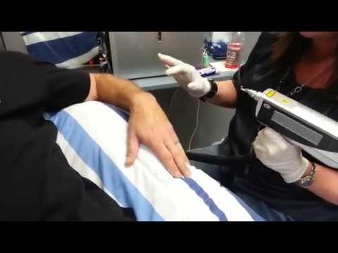 Laser Tattoo Removal at Nu Image Salon 2