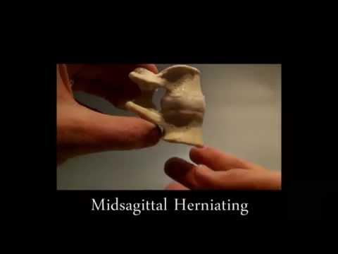 Herniating Midsagittal Model by Dynamic Disc Designs Corp.