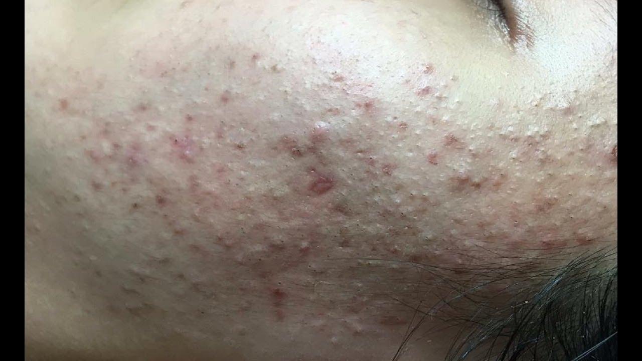 gusanos debajo de la piel