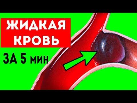 Как за 5 мин РАЗЖИЖАТЬ густую кровь БЕЗ лекарств!