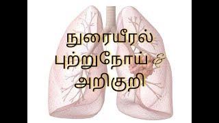 நுரையீரல் புற்றுநோய் காரணங்கள் மற்றும் அறிகுறி