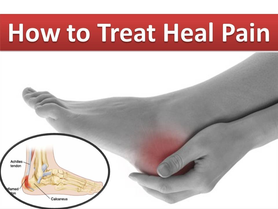 How To Cure Heel Pain Naturally