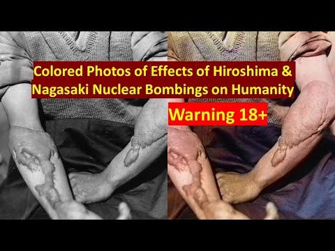 (Warning 18+) Colored Photos of Effects of Hiroshima & Nagasaki Nuclear Bombings on Humanity
