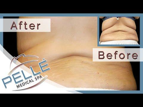 Laser Liposuction Bedford - Special Offer - Pelle Medical Spa