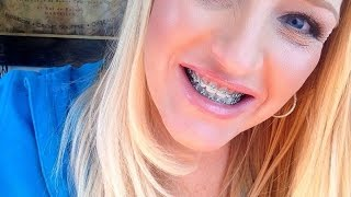 Adult Braces Update. Tips and things to buy before your braces go on