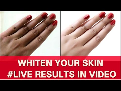 Thumbnail: FAIR HANDS & LEGS QUICKLY-SKIN WHITENING TREATMENT | RESULTS IN LIVE VIDEO