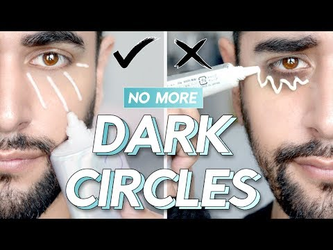 Remove Dark Under Eye Circles - How To ACTUALLY Remove Them...It's Not With Eye Cream! ✖ James Welsh